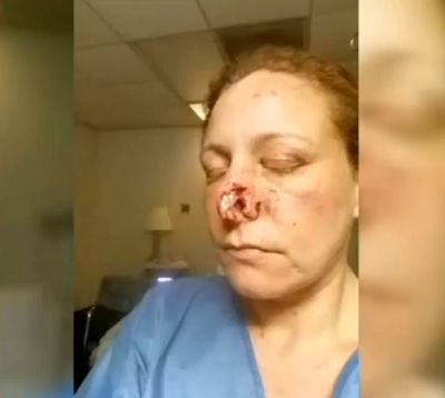 (Video) Women speaks out after nose bitten off by her Ex-Boyfriend.