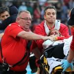 Woman hit by broken bat suffers life threatening injuries Boston Red Sox Game