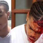 DeAndre Harris Speaks Out After Being Brutally Beat By White Racist In Charlottesville, Virginia!