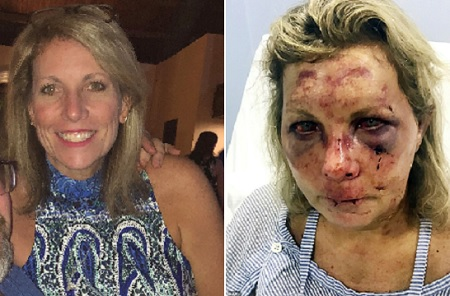 Woman who claims she was brutally beaten during her Dominican Republic vacation is suing the resort.