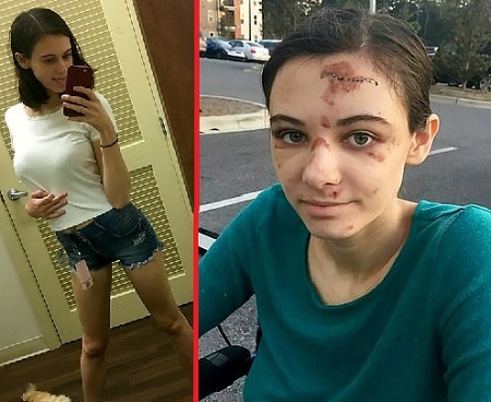 Megan Heidgerd who was drinking vodka before falling from a bathroom window broke her foot and knee, sliced open her left leg and more.