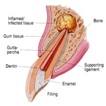 http://ScarsdaleEndo.com   apicoectomy-images-temp-1
