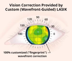 custom-lasik-b-660x560