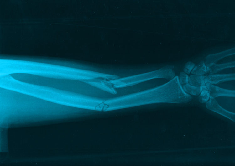 Broken Arm X-Ray