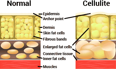 normal-vs-cellulite
