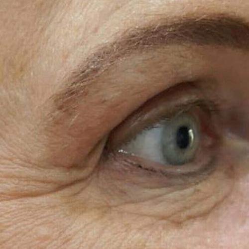 eye befo