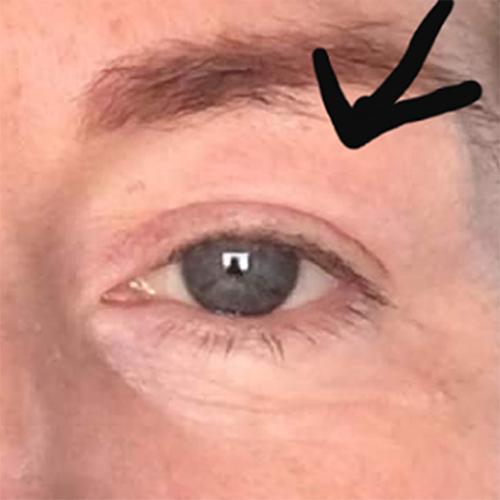 eyelid after