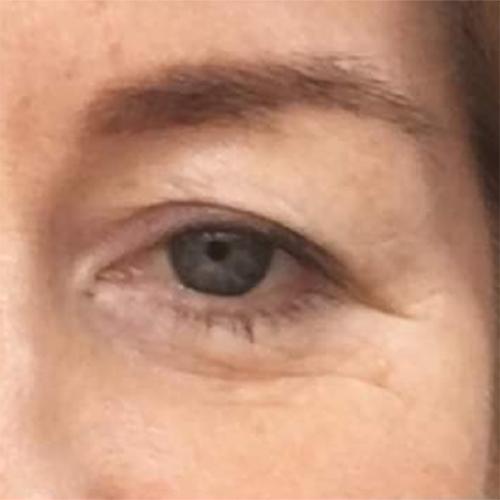 eyelid before