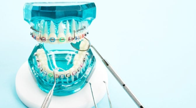 Boca Orthodontics Treatment as an Adult: Tech Advancements, the Truth Behind Smile Direct Club & More