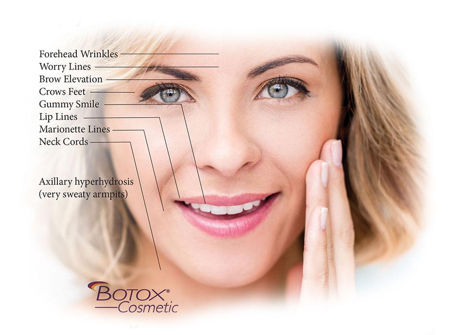 botox-photo-1