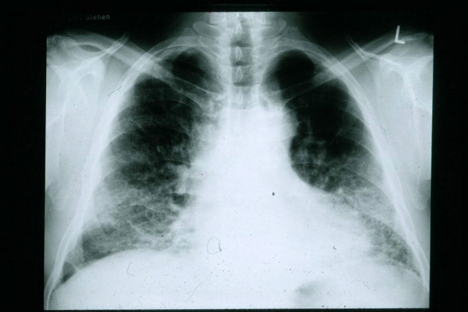 Xray of patient with Idiopathic Pulmonary Fibrosis