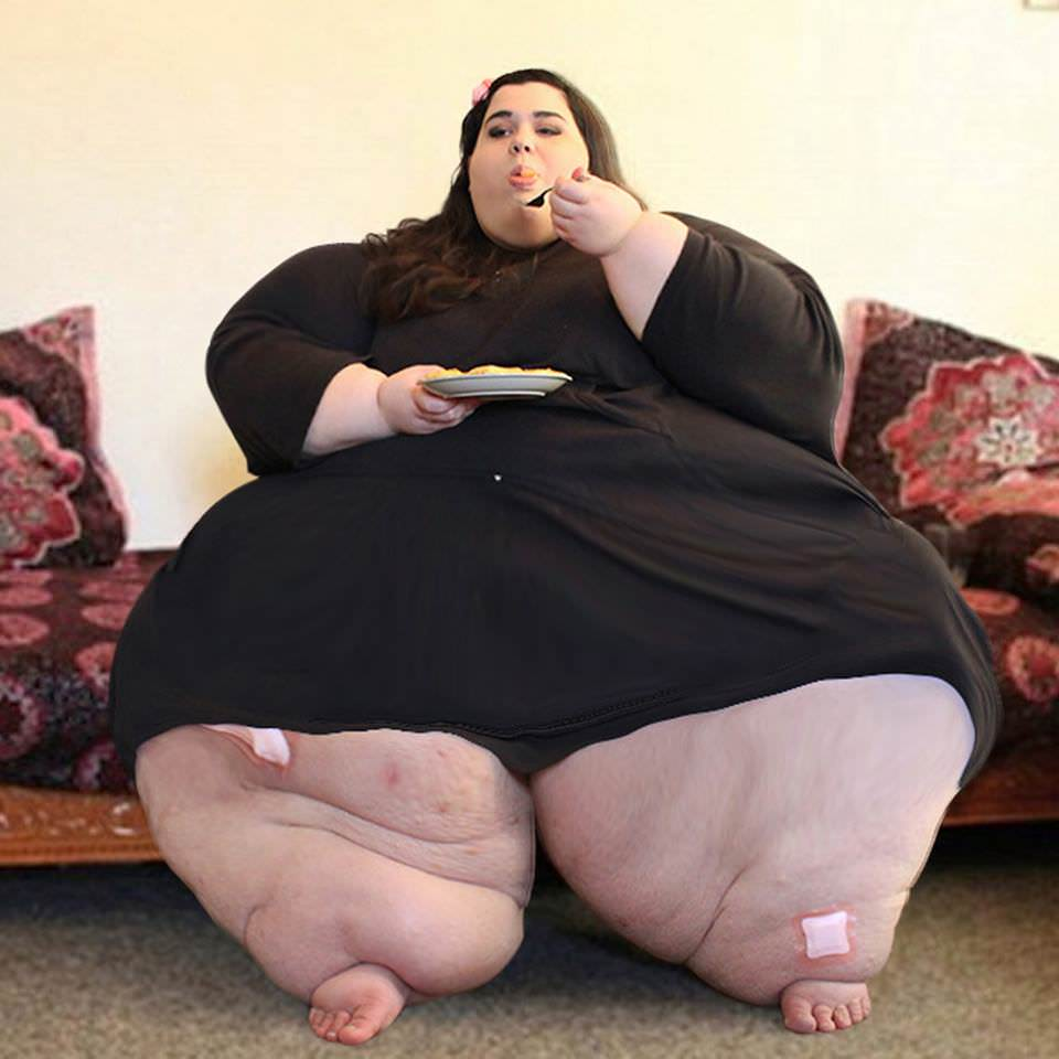 24-year old weighed 660lb. Now look at her incredible transformation after losing 267 lbs. 1