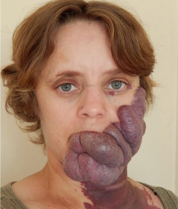 Bullies Called Her 'Purple People Eater' Because Of Birthmark But Her Transformation Is Amazing 2