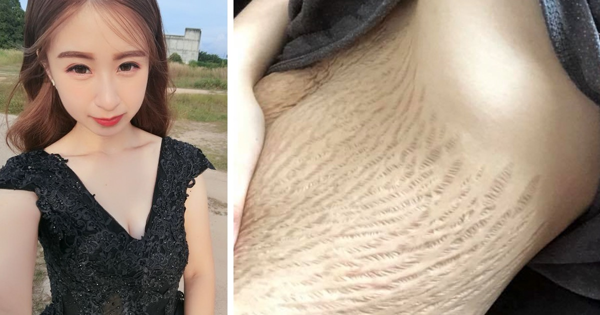 Trolls Tell 23-Year-Old Mom Her Disgusting Stretch Marks Make Them Want To Vomit, But She Had The Best Response 1
