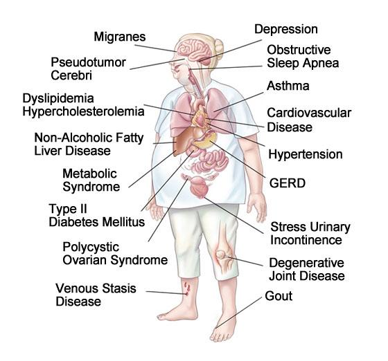 Study Depression Obesity Hypertension >> Obesity Related Illnesses Comorbidities Bariatrix Florida