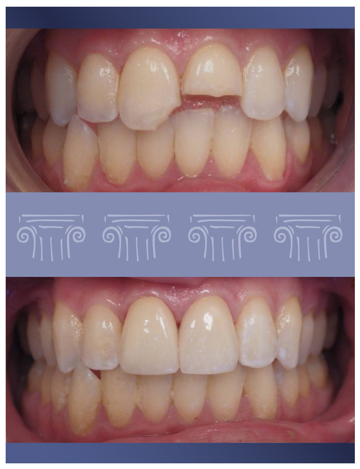 Composite Tooth Bonding
