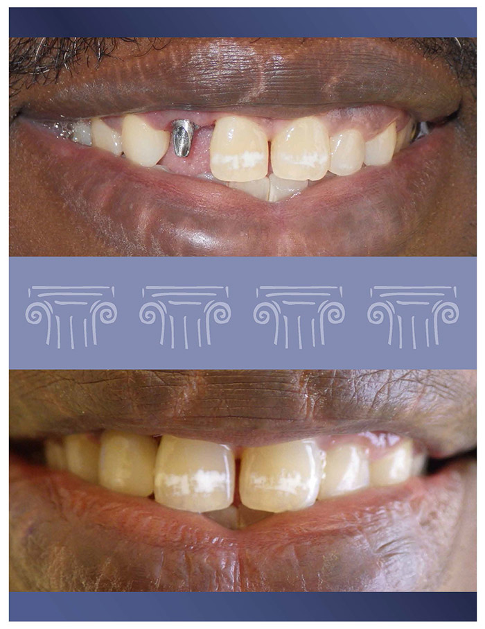 Before and After Dental Implant