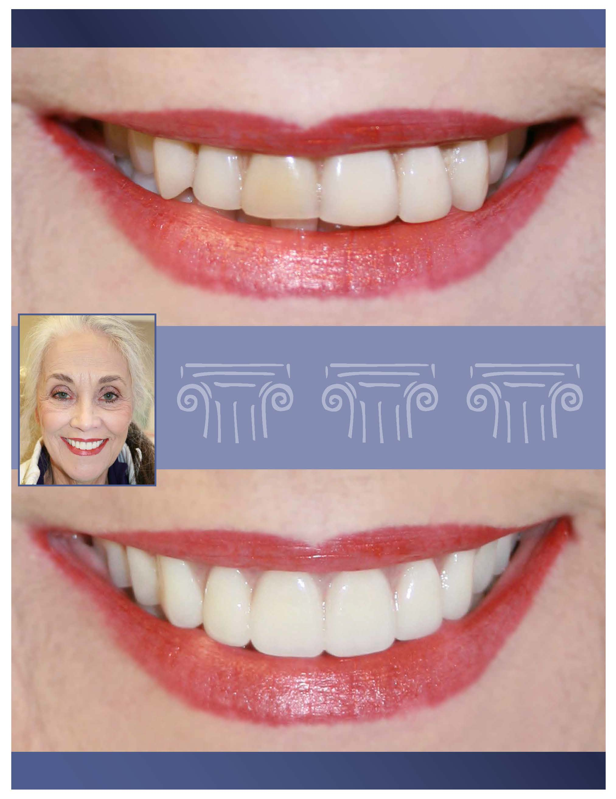 Cosmetic dentistry by a Prosthodontist
