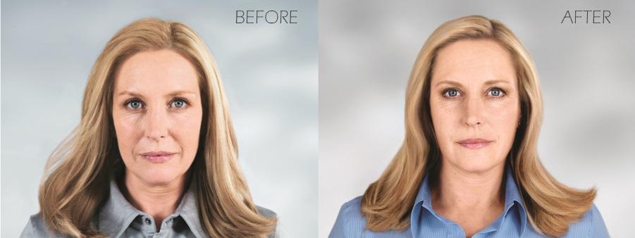Sculptra Manchester NH - Bartels Facial Rejuvenation
