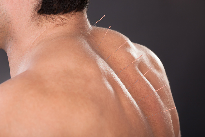 neck pain, acupuncture, back pain, noninvasive treatments, work injury
