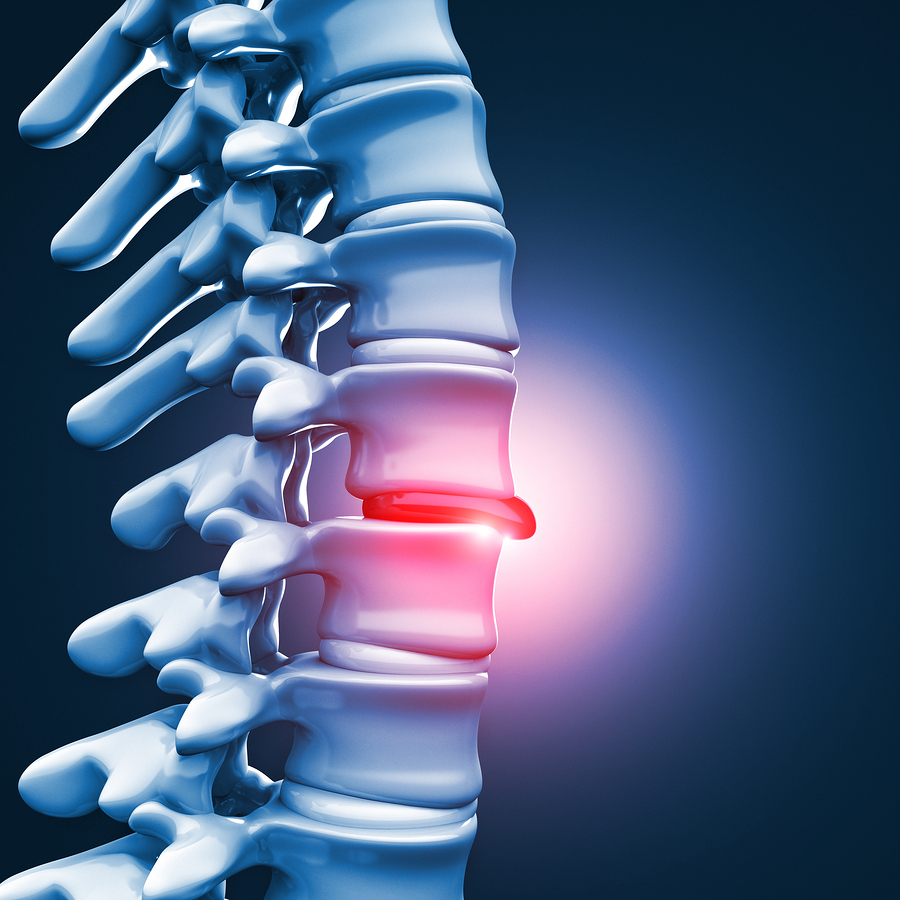 Why You Need to Try Spinal Decompression for Your Herniated Disc
