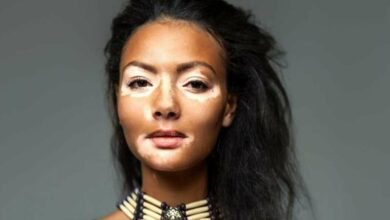 Photo of 8 Facts You Should Know About Vitiligo