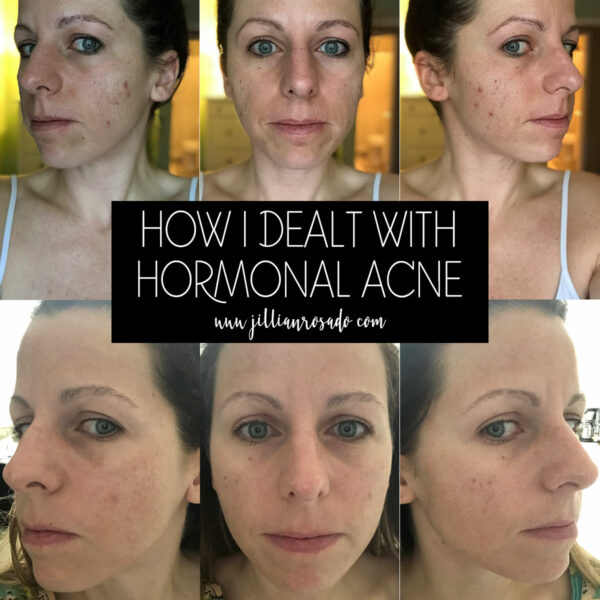 Skincare Routine Hormonal Acne