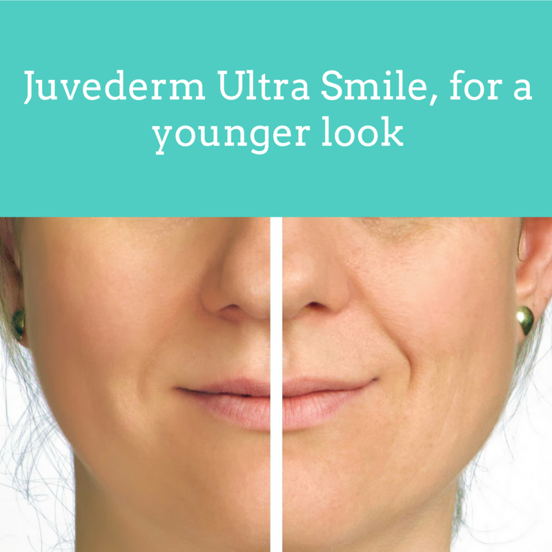 Juvederm Ultra Smile, for a younger look | My DairyFree