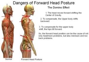 Forward-Head-Posture