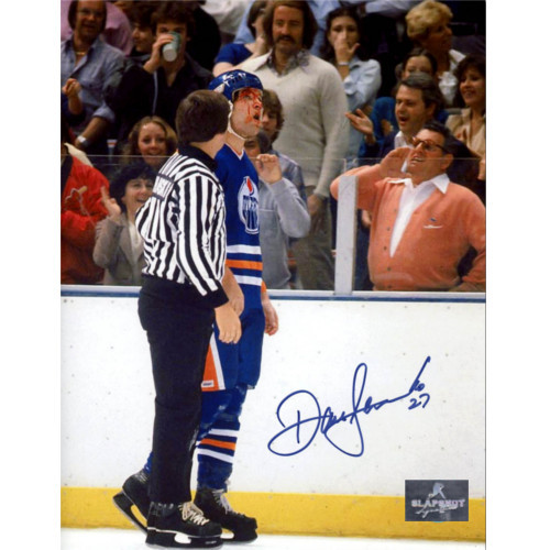 Dave Semenko Edmonton Oilers Autographed Bloody Face 8x10 Photo
