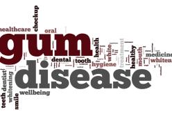 The dangers of gum disease