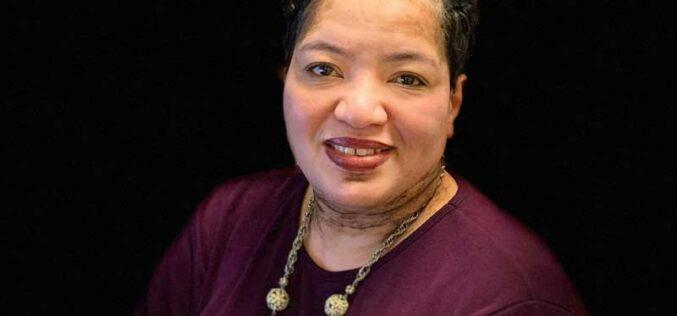 Health Hero:  Tonja Johnson Brings Support to Vitiligo Community