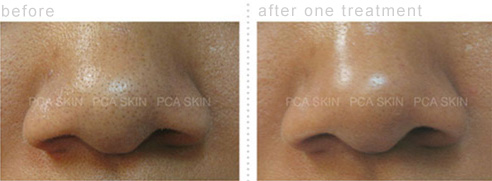 Before and After Photos of Deep Skin Cleansing