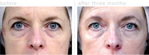 Before and After Photos of Chemical Peels for Aging Skin