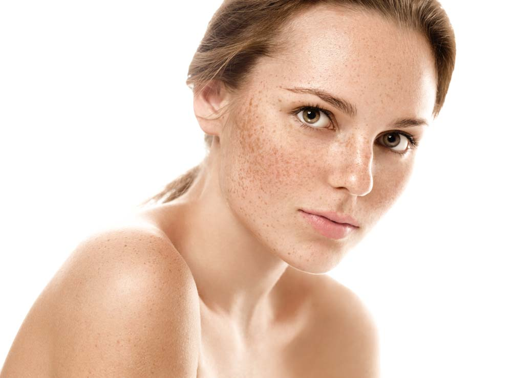 What Are Freckles? Ask Spectrum Dermatology in Scottsdale, Arizona