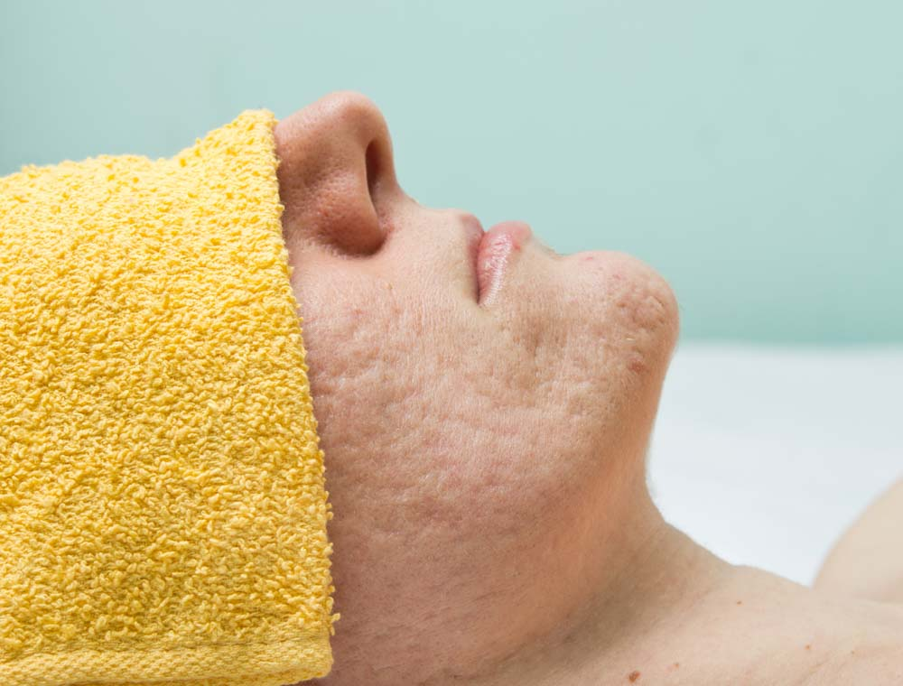 Fighting Acne With Food | Ask Top Doc's at Spectrum Dermatology