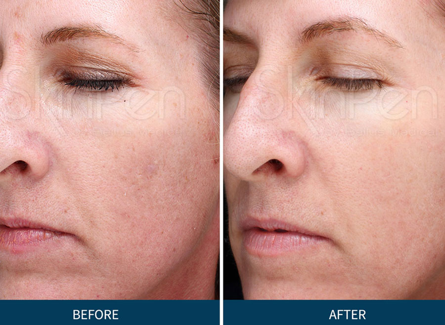 Microneedling with PRP SkinPen | Spectrum Dermatology, Scottsdale, Arizona