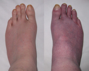 My feet, before and after 10 minutes standing, showing venous pooling.