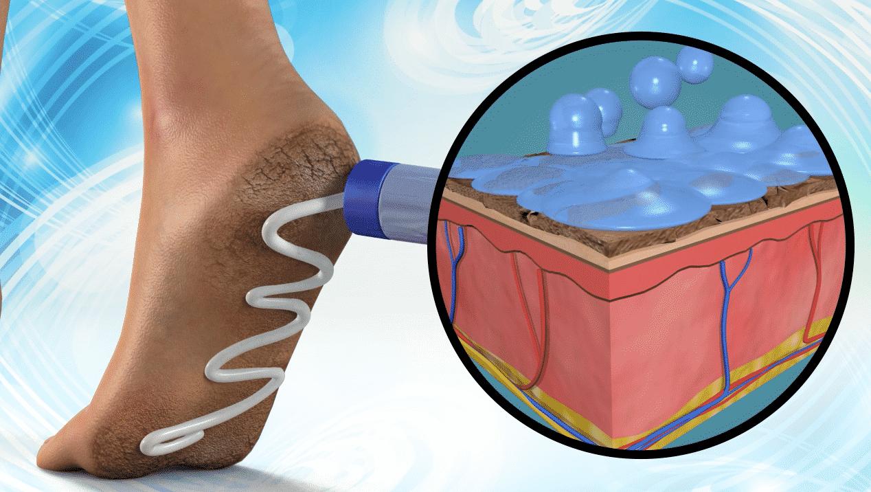 foot medicated cream animation