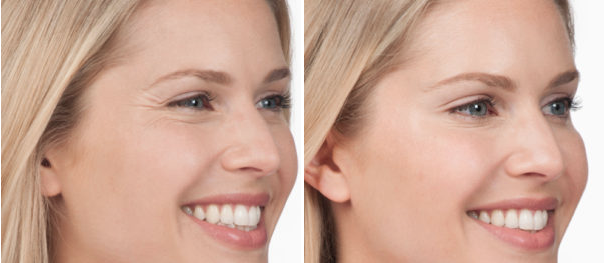Botox Cosmetics Before & After