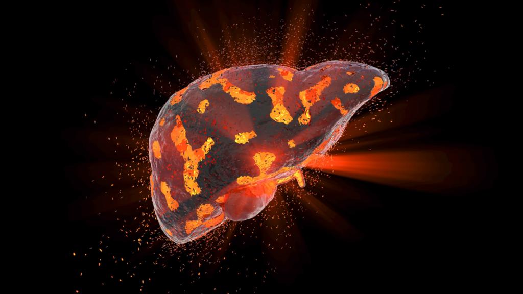 Liver Health | Dr. Ali Ghahary