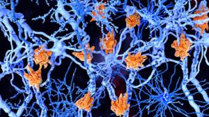 Managing Symptoms of Multiple Sclerosis