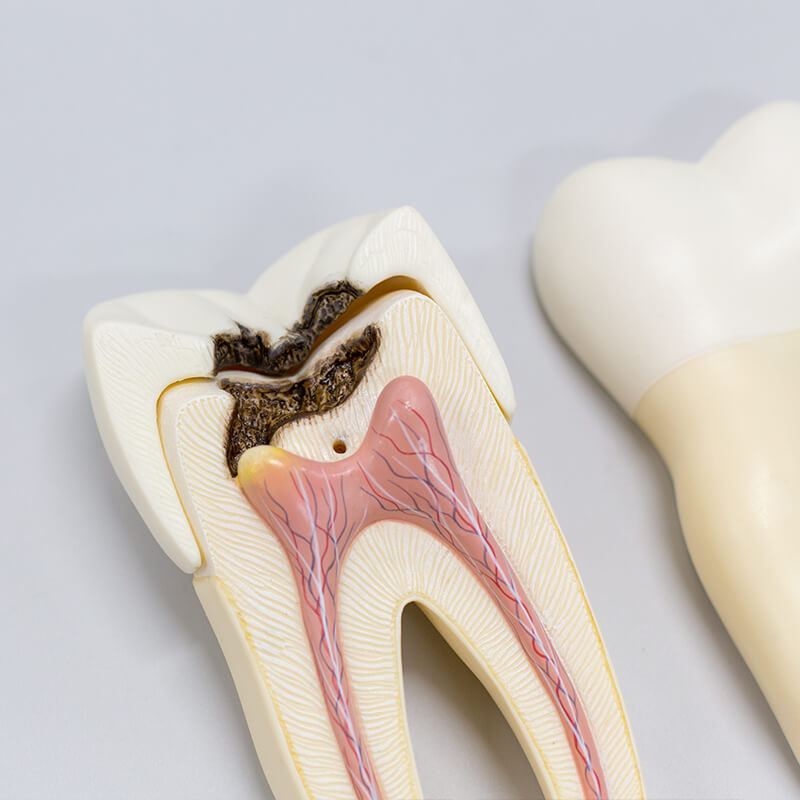 ROOT CANAL THERAPY Image for Scarsdale Endo
