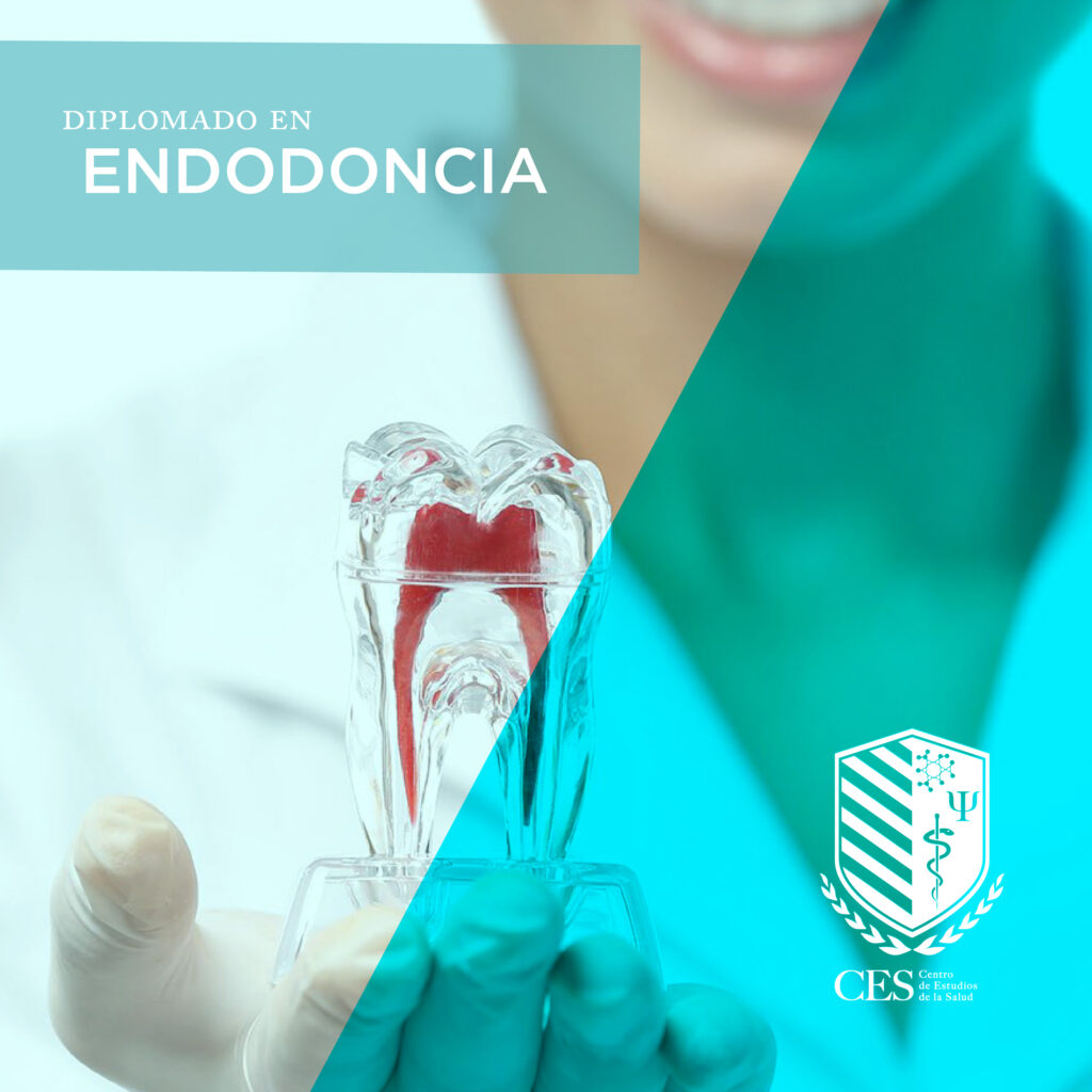 diplomado endodoncia