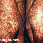 xeroderma pigmentoso