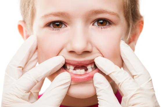 Childs Broken Tooth