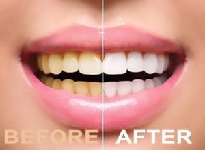 Teeth Whitening Smile before and after