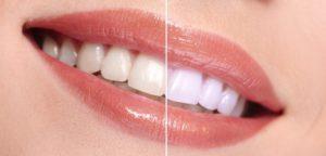 Glo Teeth Whitening