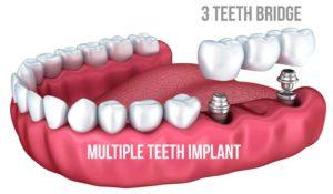 Multi Teeth Dental Implant
