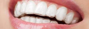 Dental Take Home Trays